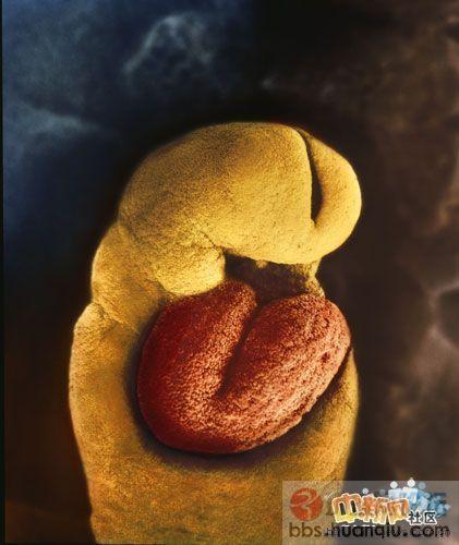 【珍藏】一个婴儿的诞生——令人惊叹的未出生胎儿照片 - 寒雪 - 寒雪的博客