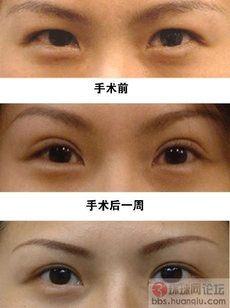 双眼皮手术失败后的修复