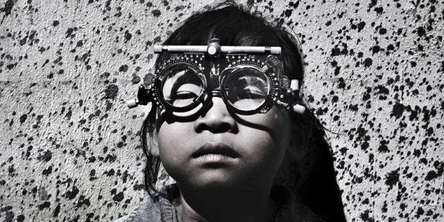 预防及治疗儿童眼病